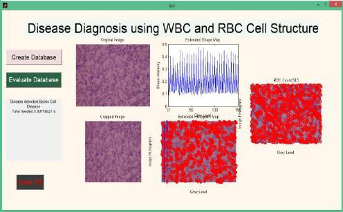 This method deals with designing an automated system for detecting the shape of deformed blood cells within seconds with higher accuracy.