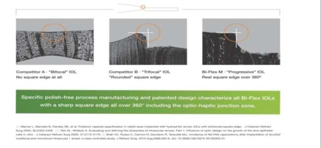 toric and multifocal iol book