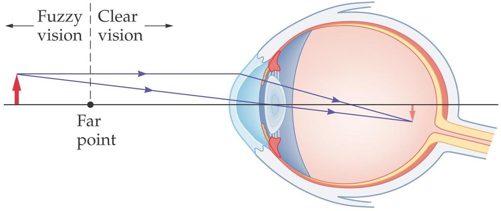 27-2 Lenses in Combination and Corrective Optics A nearsighted person has a far point that is a finite distance away; objects