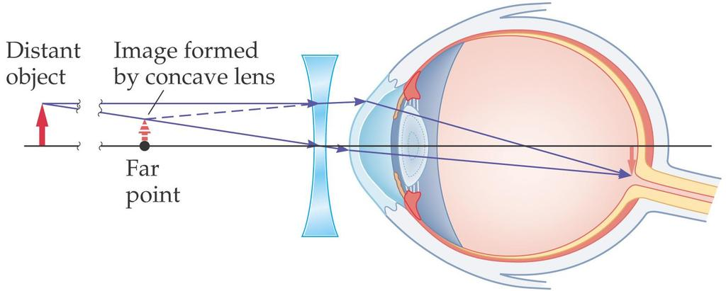 27-2 Lenses in Combination and Corrective Optics To correct this, a diverging lens is