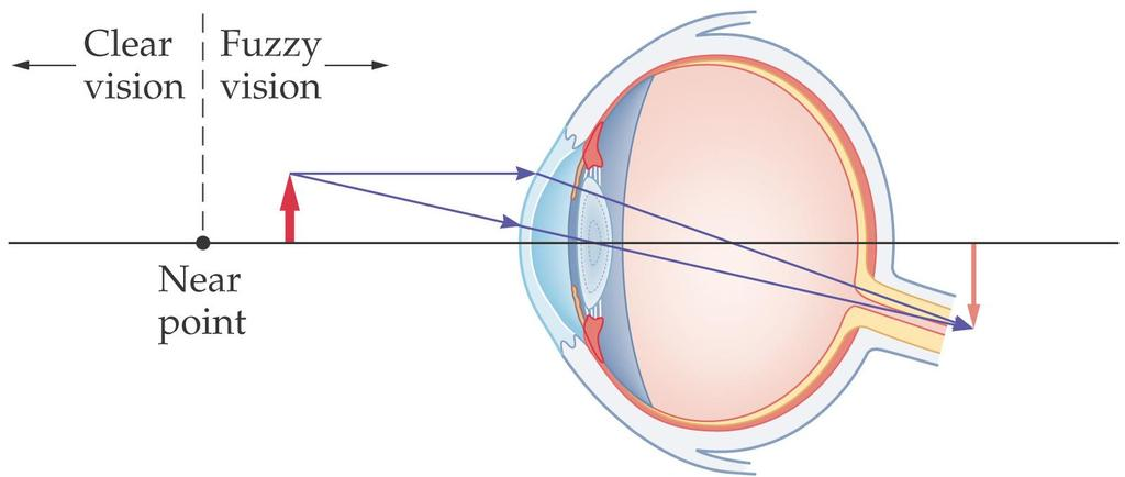 27-2 Lenses in Combination and Corrective Optics A person who is farsighted can see distant objects clearly, but cannot focus on