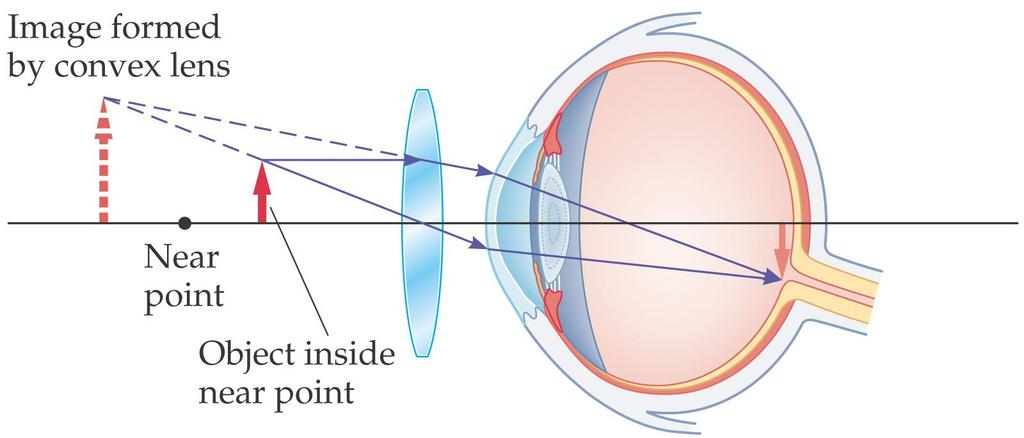 27-2 Lenses in Combination and Corrective Optics To correct farsightedness, a converging