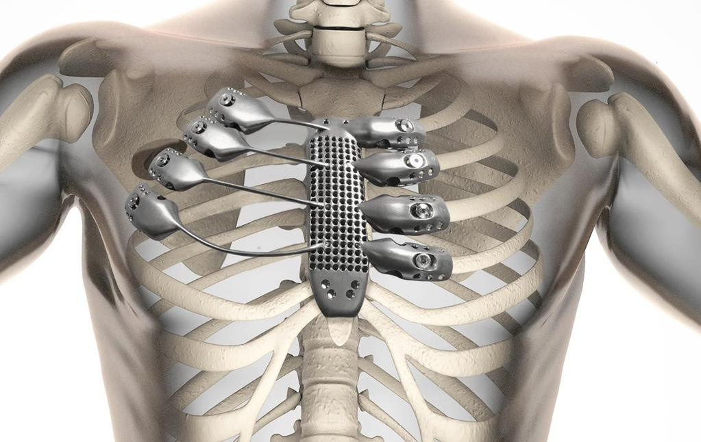 A 54-year Australian suffering from chest wall sarcoma received a 3D printed titanium sternum