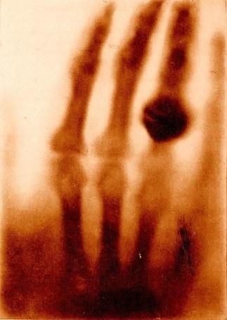 2 Chapter 1: CMOS Readout Front-Ends Figure 1-1: X-ray image of Rontgen wife s hand in 1895, as one of mankind s greatest technological accomplishments X-ray imaging is used in variety of