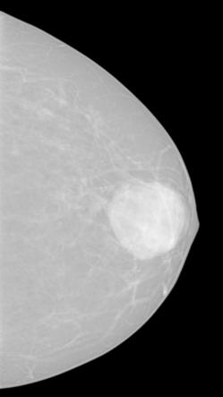address the methods used in generation of models of the breast cancer and their use in emerging x-ray breast imaging.