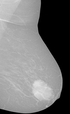 METHODS FOR MODELLING OF BREAST LESIONS a region, containing the breast lesion is selected. A region growing method is applied to segment initially the breast lesion.