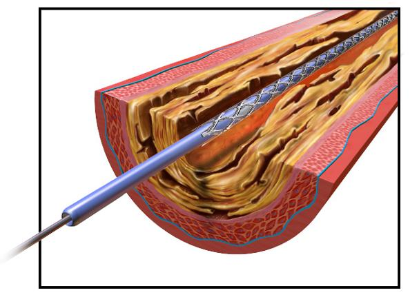 In this reduceddiameter configuration, the stent is able to travel through a patient s blood vessel in a smaller profile designed to